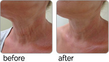 clearlift before and after