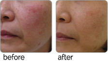 clearlift-before_after_02