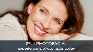 IPL and Photofacial at Lucy Peters Aesthetic Centers
