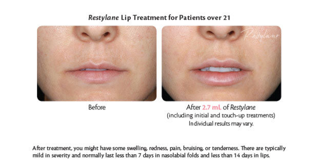 restylane for lip enhancement