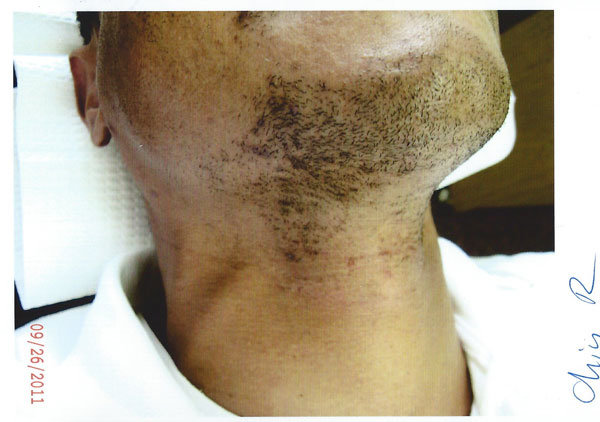 "Side view of Donovan's chin and neck before LP System permanent hair removal. Watch the video above to see the ""after"" results."