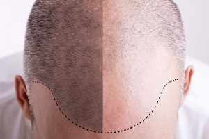 Male Hair Restoration in Manhattan, New York City