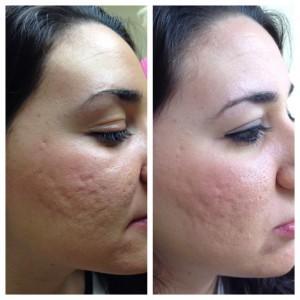 Skin treatments with microneedling can improve the look of your skin.