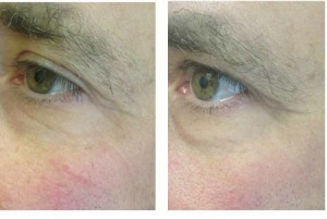 Rosacea can benefit from microneedling treatments.