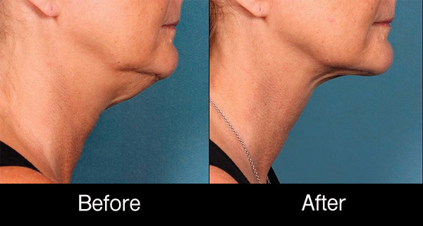 Kybella-injections-double-chin-before-after-photo-NYC