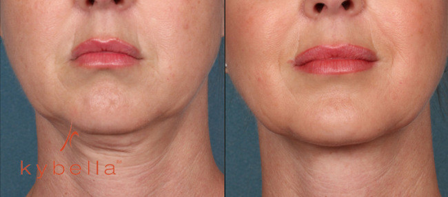 kybella-injections-double-chin-NYC