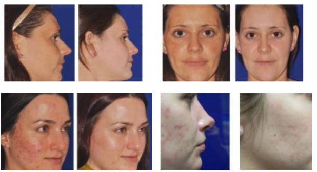 microneedling-before-after-photos-NYC