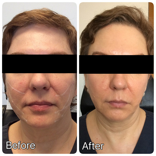 NYC Thread Lifts | Non-Surgical Face Lift in About an Hour | Lucy
